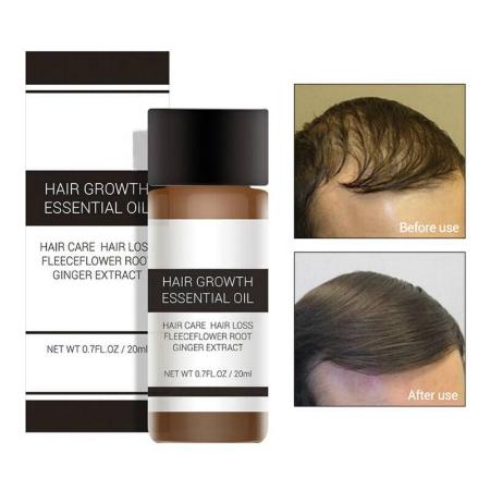 Lanbena Hair Growth Oil