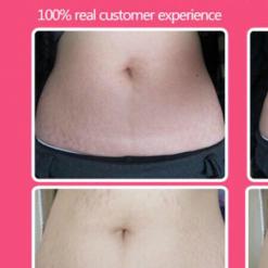 Pregnancy-Stretch-Marks-And-Cellulites-Lightening-Cream